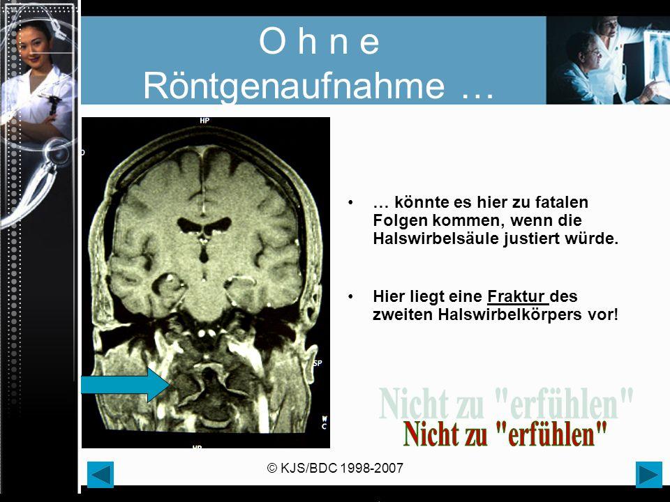 © KJS/BDC 1998-2007 O h n e Röntgenaufnahme … … könnte es hier zu fatalen Folgen kommen, wenn die Halswirbelsäule justiert würde. Hier liegt eine Frak