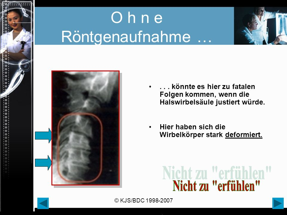 © KJS/BDC 1998-2007 O h n e Röntgenaufnahme …... könnte es hier zu fatalen Folgen kommen, wenn die Halswirbelsäule justiert würde. Hier haben sich die