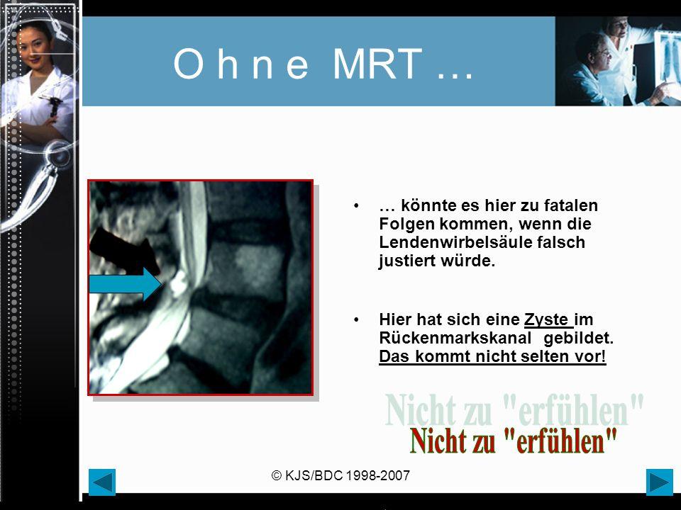 © KJS/BDC 1998-2007 O h n e MRT … … könnte es hier zu fatalen Folgen kommen, wenn die Lendenwirbelsäule falsch justiert würde. Hier hat sich eine Zyst