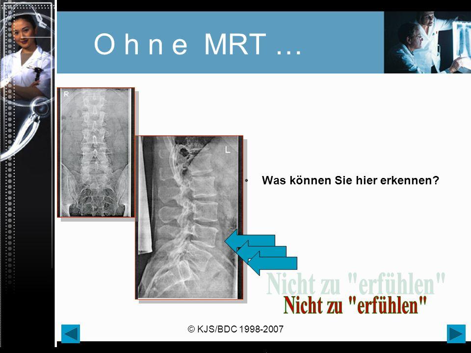 © KJS/BDC 1998-2007 O h n e MRT … Was können Sie hier erkennen?