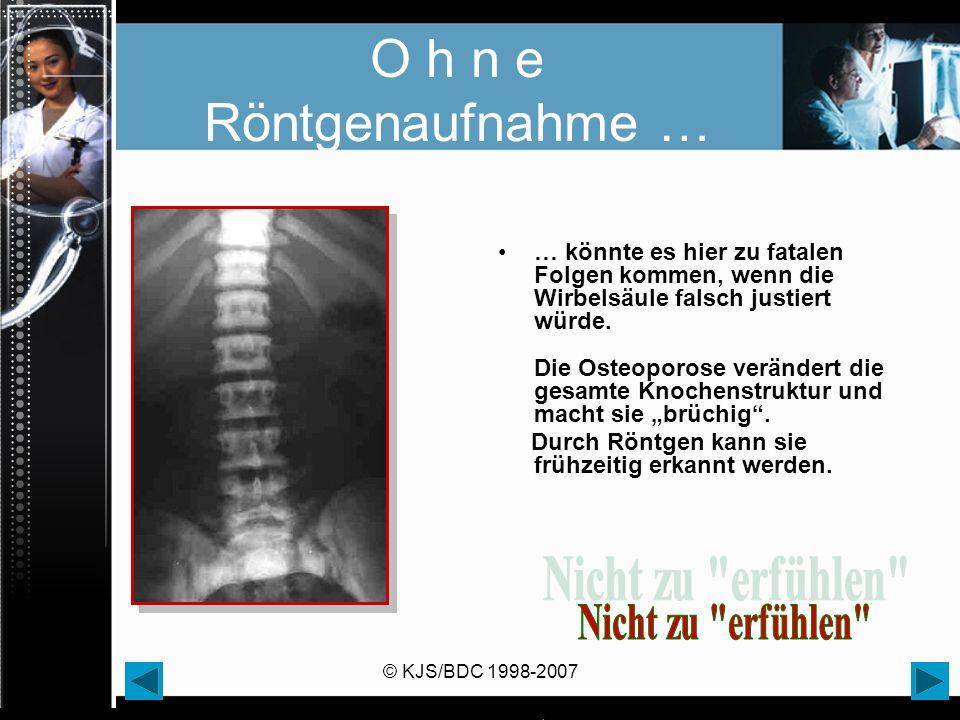 © KJS/BDC 1998-2007 O h n e Röntgenaufnahme … … könnte es hier zu fatalen Folgen kommen, wenn die Wirbelsäule falsch justiert würde. Die Osteoporose v