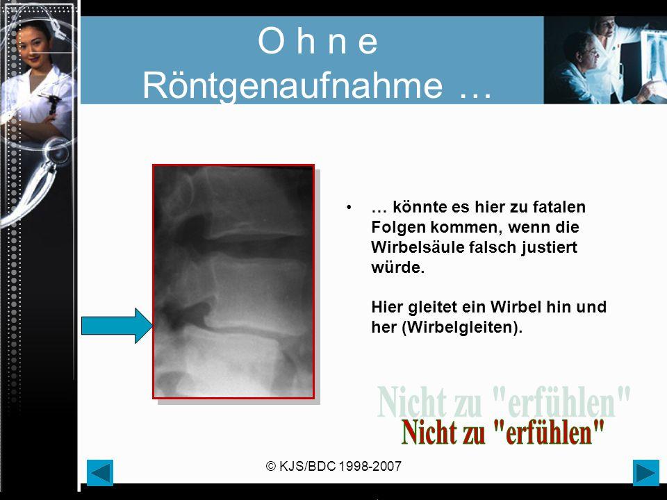 © KJS/BDC 1998-2007 O h n e Röntgenaufnahme … … könnte es hier zu fatalen Folgen kommen, wenn die Wirbelsäule falsch justiert würde. Hier gleitet ein