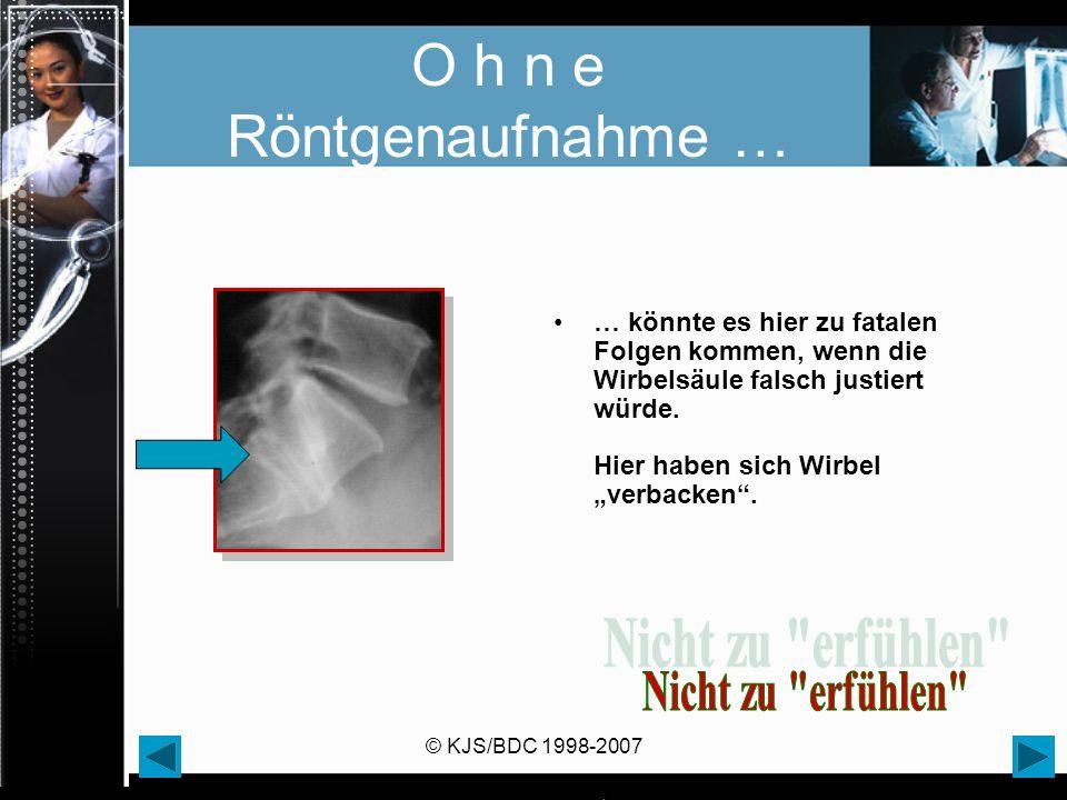 © KJS/BDC 1998-2007 O h n e Röntgenaufnahme … … könnte es hier zu fatalen Folgen kommen, wenn die Wirbelsäule falsch justiert würde. Hier haben sich W