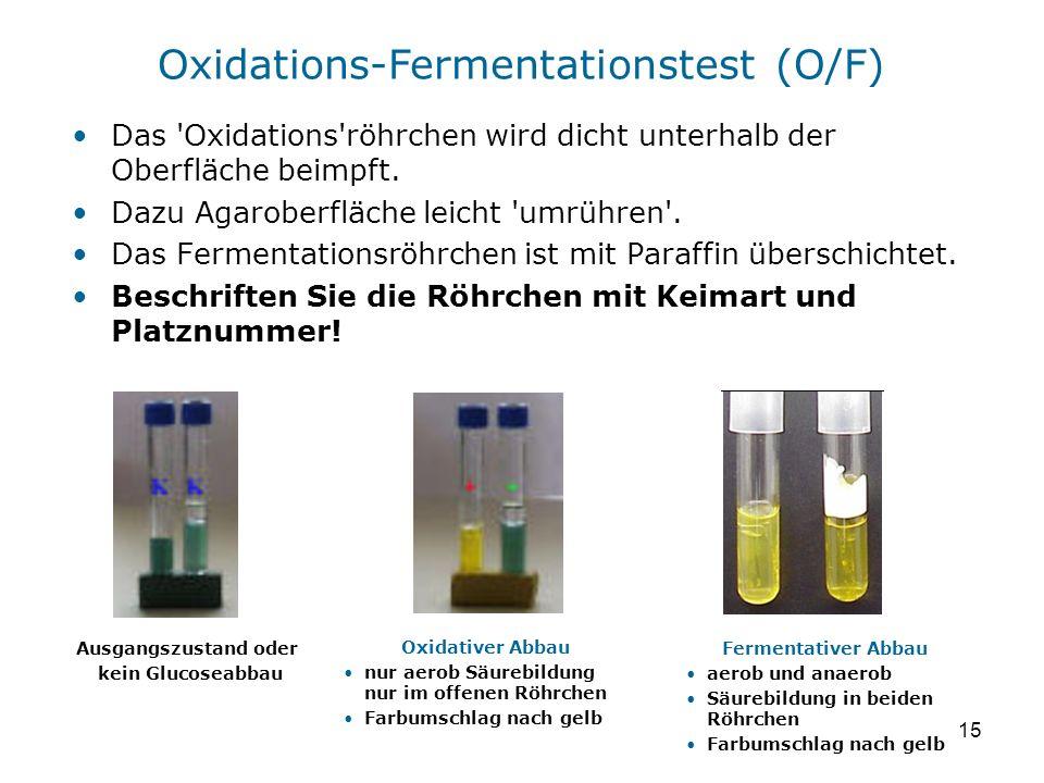 15 Das 'Oxidations'röhrchen wird dicht unterhalb der Oberfläche beimpft. Dazu Agaroberfläche leicht 'umrühren'. Das Fermentationsröhrchen ist mit Para