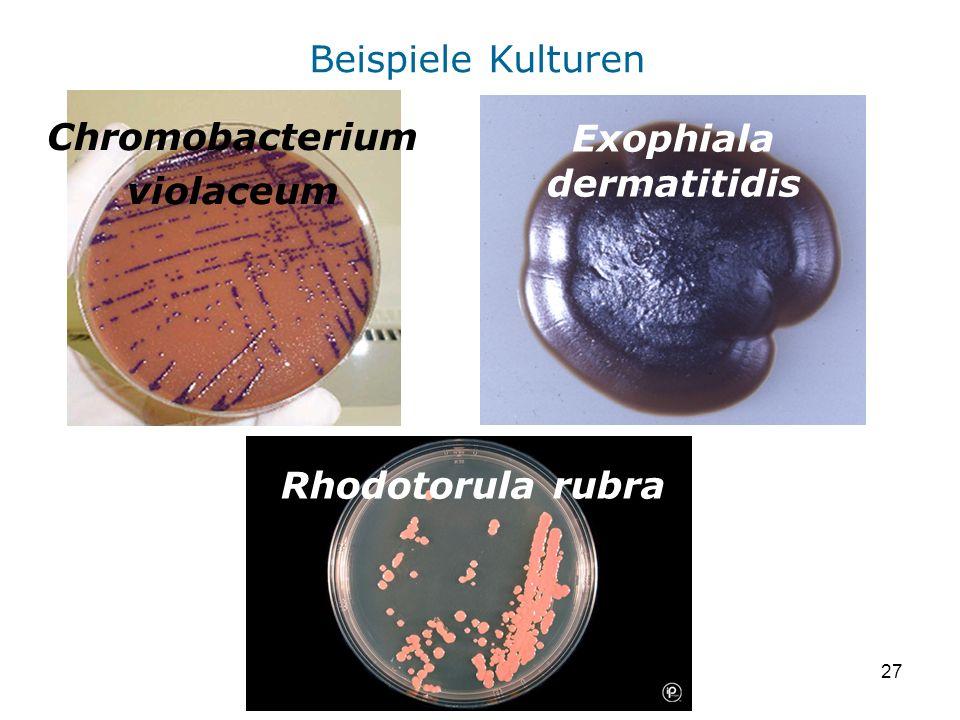 27 Exophiala dermatitidis Rhodotorula rubra Chromobacterium violaceum Beispiele Kulturen