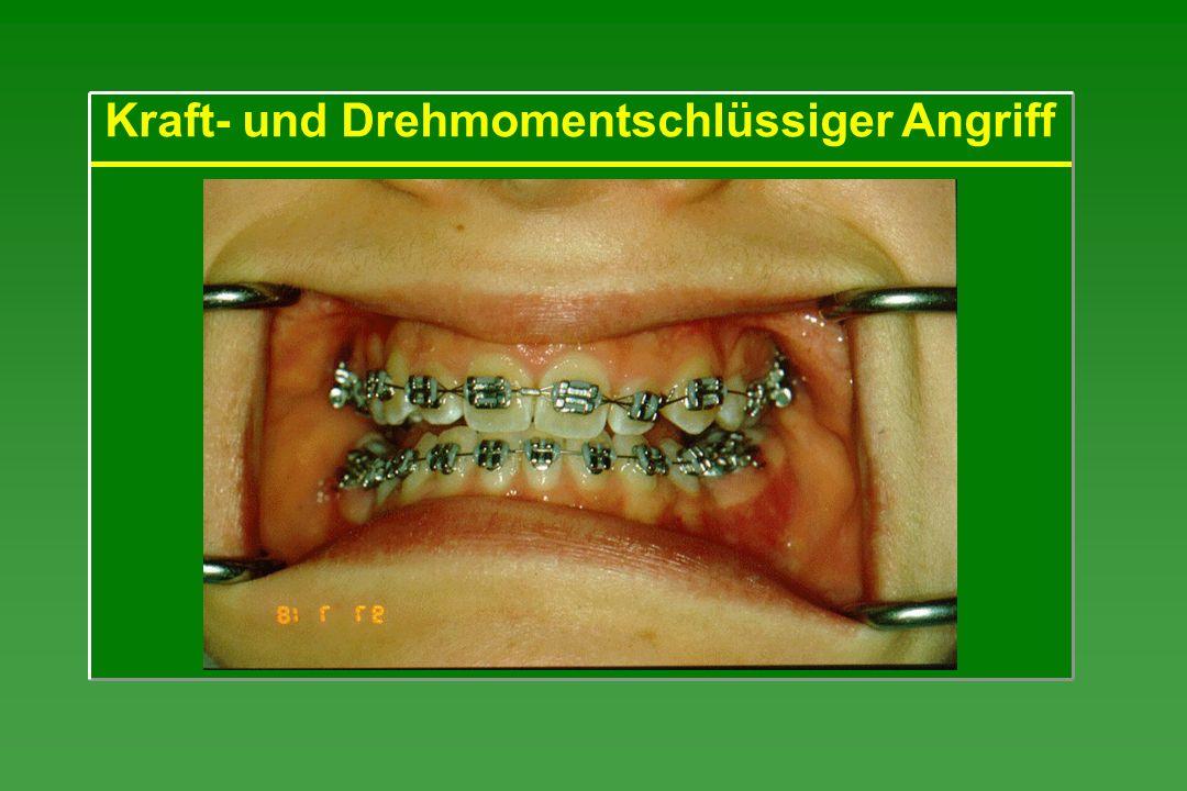 Es wird zunächst die angestrebte Bewegung betrachtet und das dafür notwendige Kraftsystem im WZ ermittelt: körperliche Zahnbewegung einzelne Kraft Anschließend wird das hierzu äquivalente Kraft- system im Bracket berechnet.