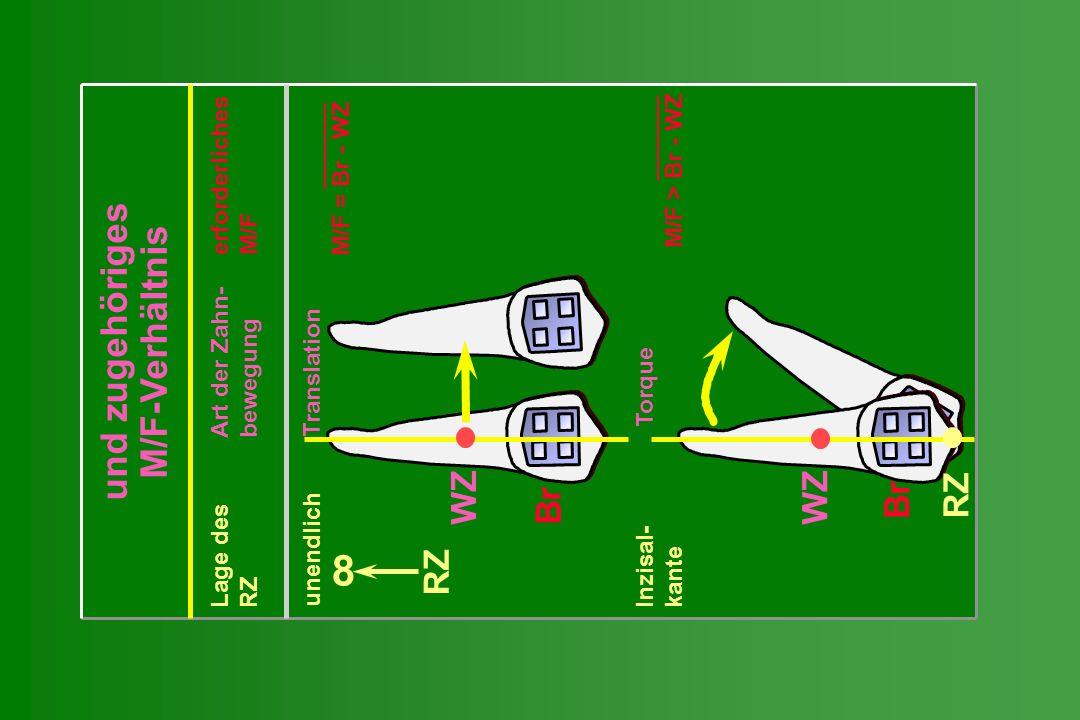 und zugehöriges M/F-Verhältnis Lage des Art der Zahn- erforderliches RZ bewegung M/F unendlich Translation M/F = Br - WZ Inzisal- Torque kanteM/F > Br