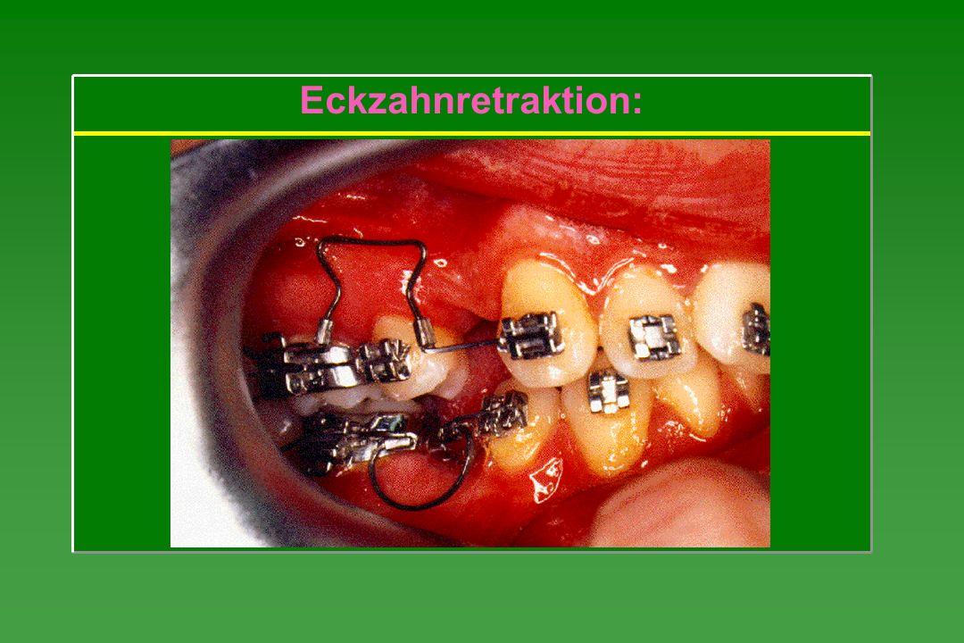 Eckzahnretraktion:
