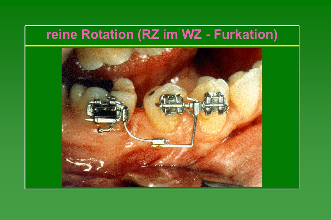 reine Rotation (RZ im WZ - Furkation)