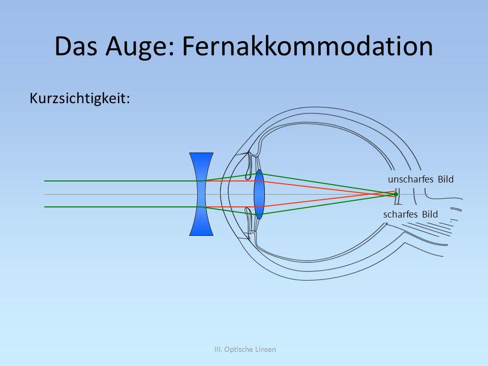 III. Optische Linsen Das Auge: Fernakkommodation Kurzsichtigkeit: unscharfes Bild scharfes Bild