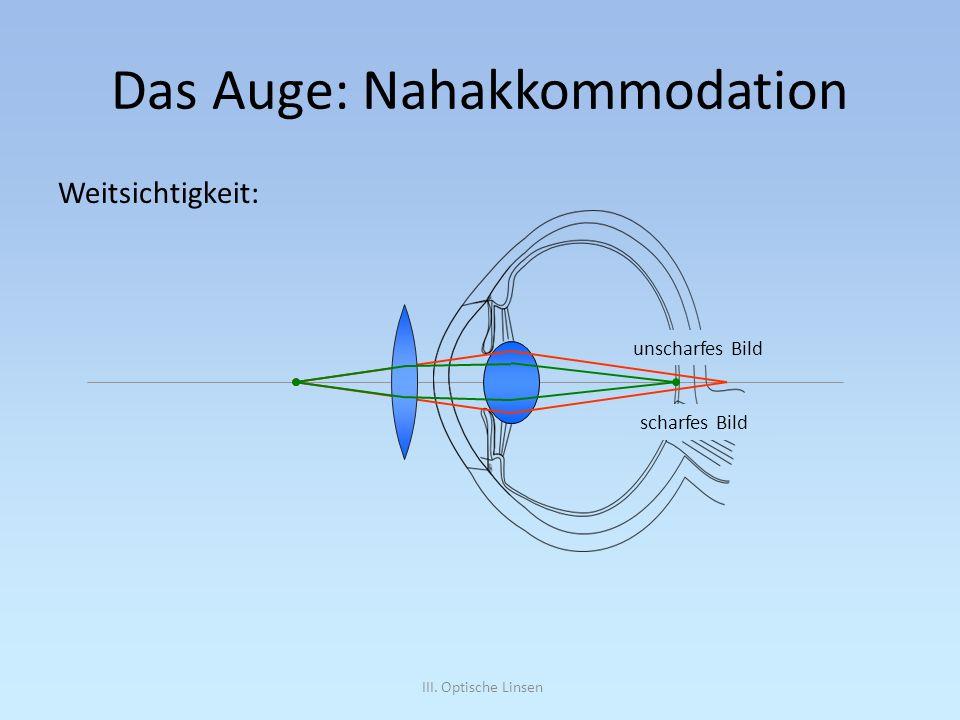 III. Optische Linsen Das Auge: Nahakkommodation Weitsichtigkeit: unscharfes Bild scharfes Bild