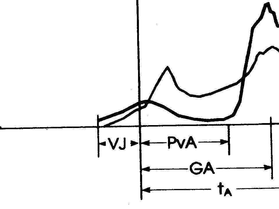 Auffassung zur Schnelligkeit von Bauersfeld/Voss Schnell ausgeführte Bewegungen seien programmgesteuert. Es existieren jeweils zwei Zeitprogramme für
