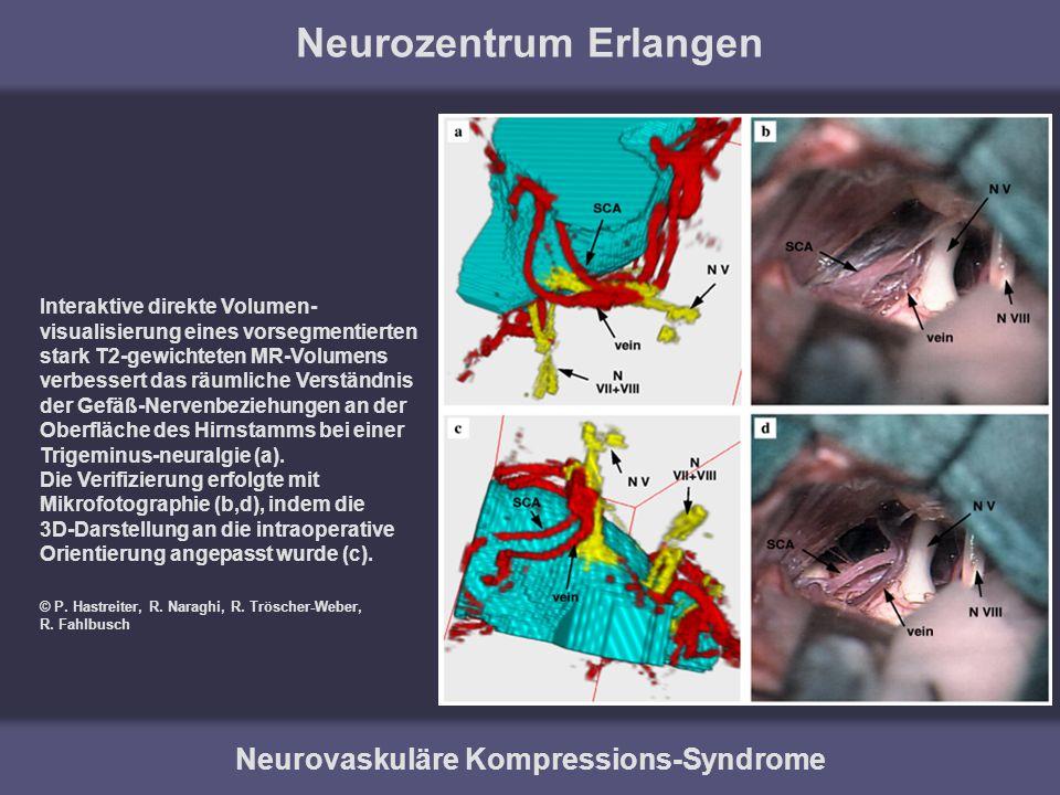 Neurozentrum Erlangen Neurovaskuläre Kompressions-Syndrome Interaktive direkte Volumen- visualisierung eines vorsegmentierten stark T2-gewichteten MR-
