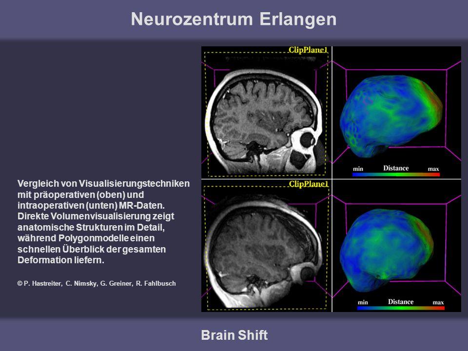 Neurozentrum Erlangen Brain Shift Vergleich von Visualisierungstechniken mit präoperativen (oben) und intraoperativen (unten) MR-Daten. Direkte Volume