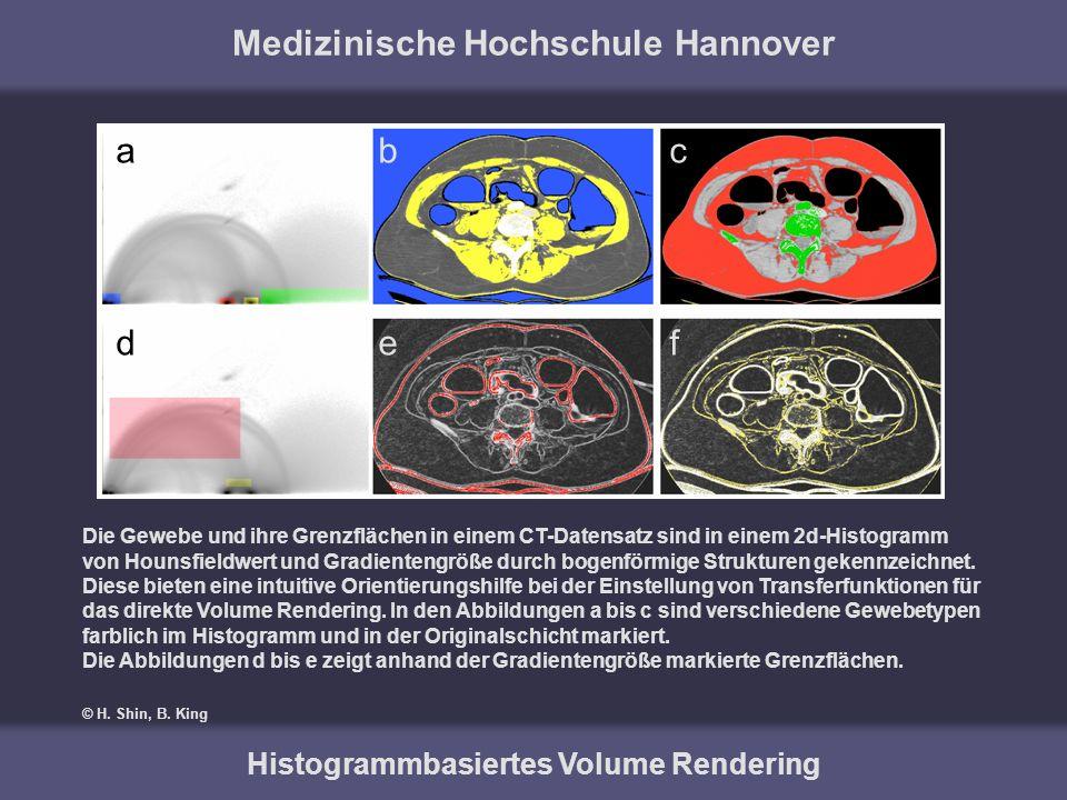 Medizinische Hochschule Hannover Histogrammbasiertes Volume Rendering Die Gewebe und ihre Grenzflächen in einem CT-Datensatz sind in einem 2d-Histogra