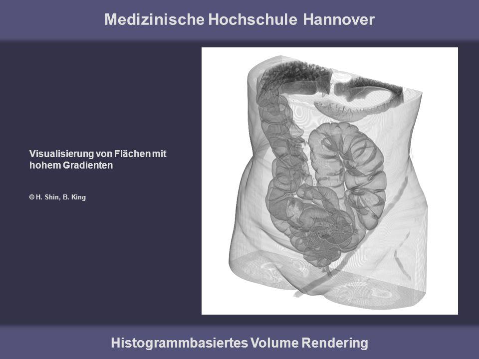 Medizinische Hochschule Hannover Histogrammbasiertes Volume Rendering Visualisierung von Flächen mit hohem Gradienten © H. Shin, B. King