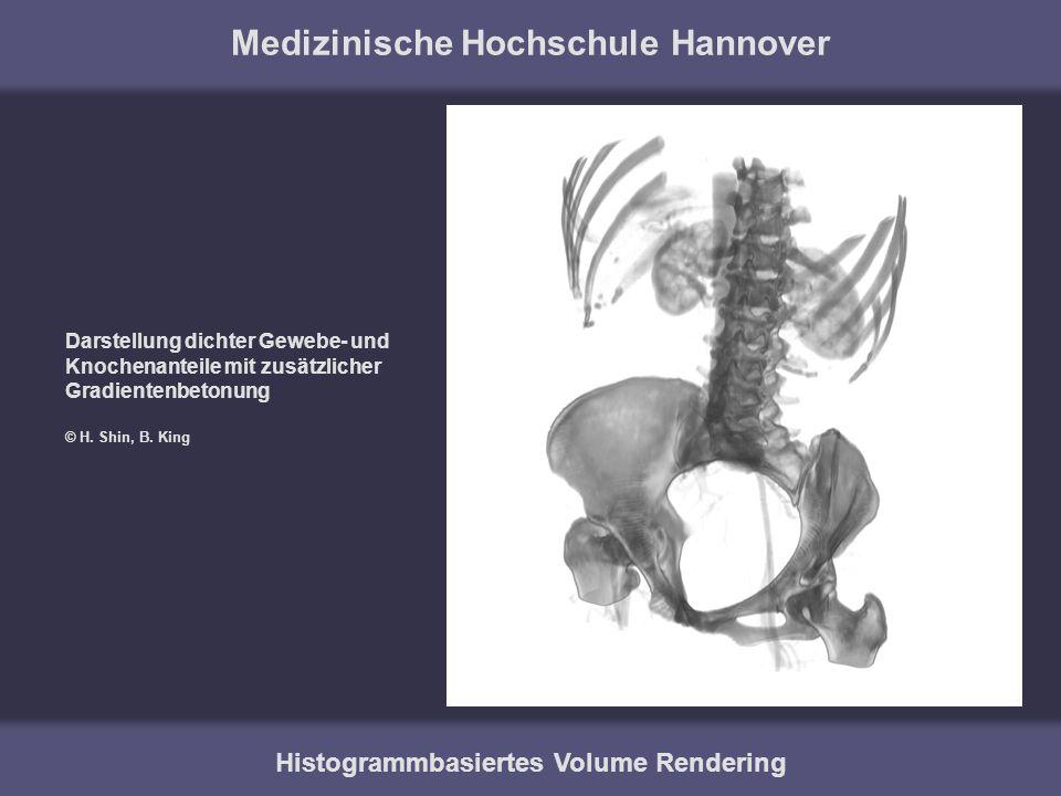 Medizinische Hochschule Hannover Histogrammbasiertes Volume Rendering Darstellung dichter Gewebe- und Knochenanteile mit zusätzlicher Gradientenbetonu