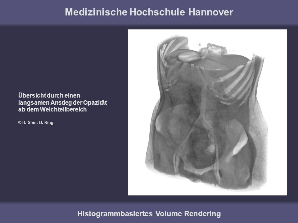 Medizinische Hochschule Hannover Histogrammbasiertes Volume Rendering Übersicht durch einen langsamen Anstieg der Opazität ab dem Weichteilbereich © H