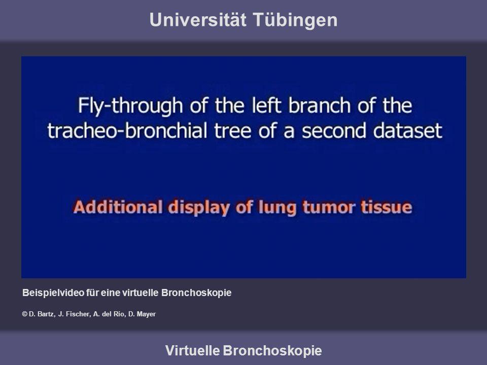 Universität Tübingen Virtuelle Bronchoskopie Beispielvideo für eine virtuelle Bronchoskopie © D. Bartz, J. Fischer, A. del Río, D. Mayer