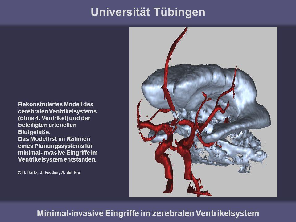 Universität Tübingen Minimal-invasive Eingriffe im zerebralen Ventrikelsystem Rekonstruiertes Modell des cerebralen Ventrikelsystems (ohne 4. Ventrike