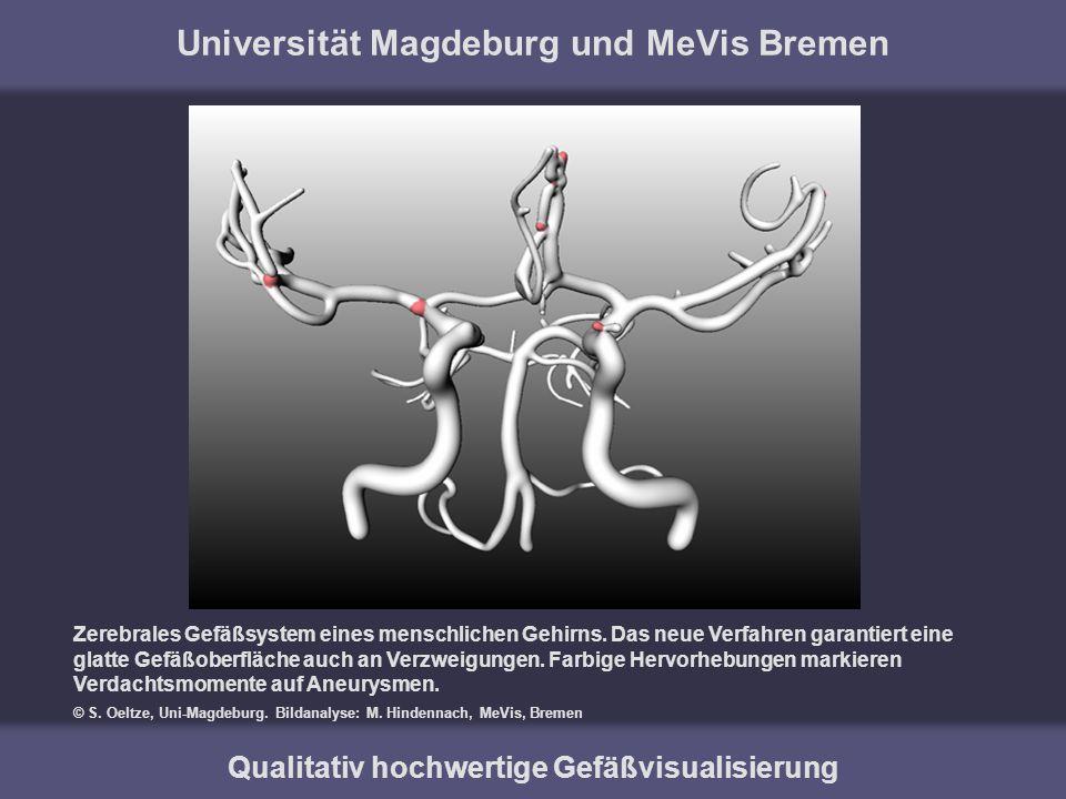 Universität Magdeburg und MeVis Bremen Qualitativ hochwertige Gefäßvisualisierung Zerebrales Gefäßsystem eines menschlichen Gehirns. Das neue Verfahre