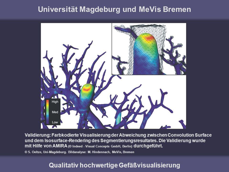 Universität Magdeburg und MeVis Bremen Qualitativ hochwertige Gefäßvisualisierung Validierung: Farbkodierte Visualisierung der Abweichung zwischen Con