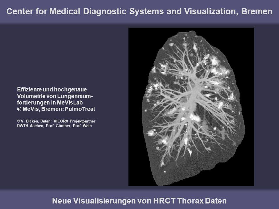 Center for Medical Diagnostic Systems and Visualization, Bremen Neue Visualisierungen von HRCT Thorax Daten Effiziente und hochgenaue Volumetrie von L