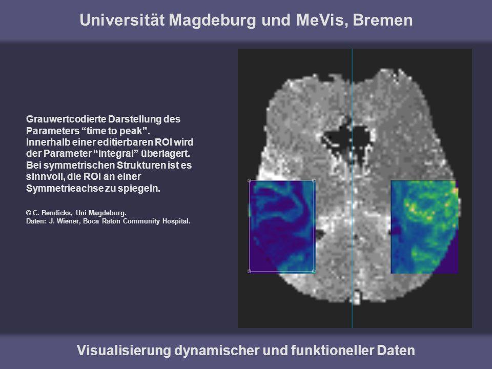 Universität Magdeburg und MeVis, Bremen Visualisierung dynamischer und funktioneller Daten Grauwertcodierte Darstellung des Parameters time to peak. I