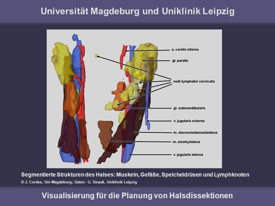 Universität Magdeburg und Uniklinik Leipzig Visualisierung für die Planung von Halsdissektionen Segmentierte Strukturen des Halses: Muskeln, Gefäße, S
