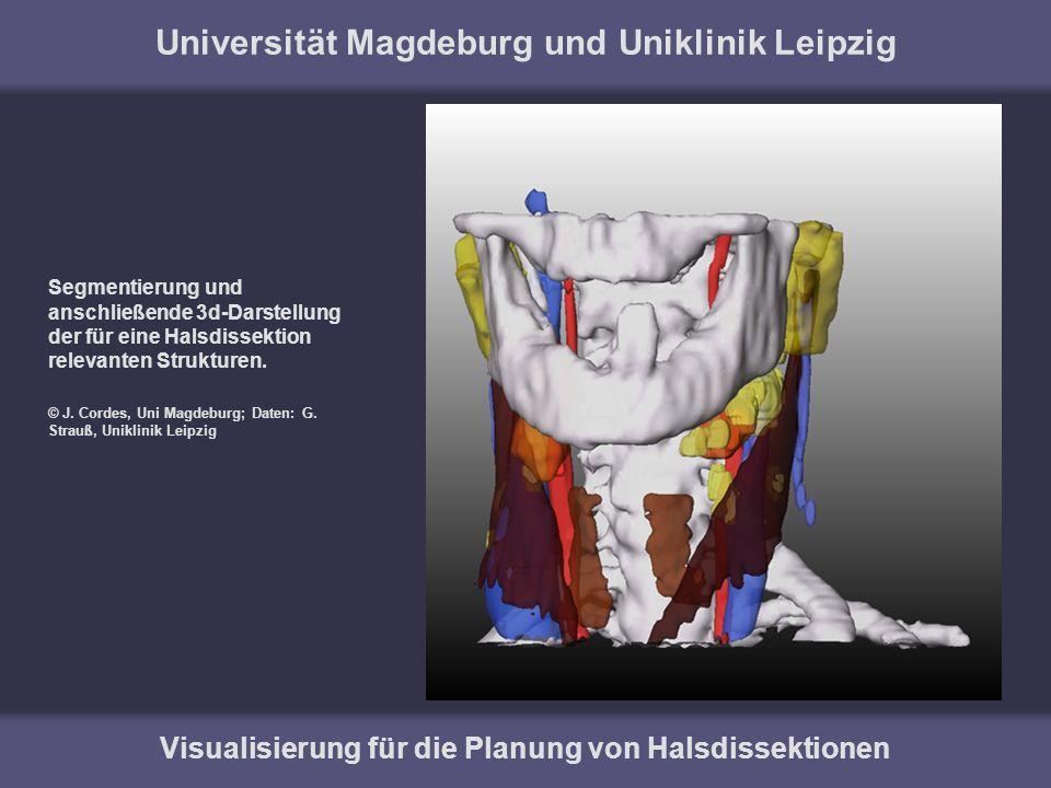 Universität Magdeburg und Uniklinik Leipzig Visualisierung für die Planung von Halsdissektionen 3d-Darstellung der für eine Halsdissektion relevanten Strukturen.