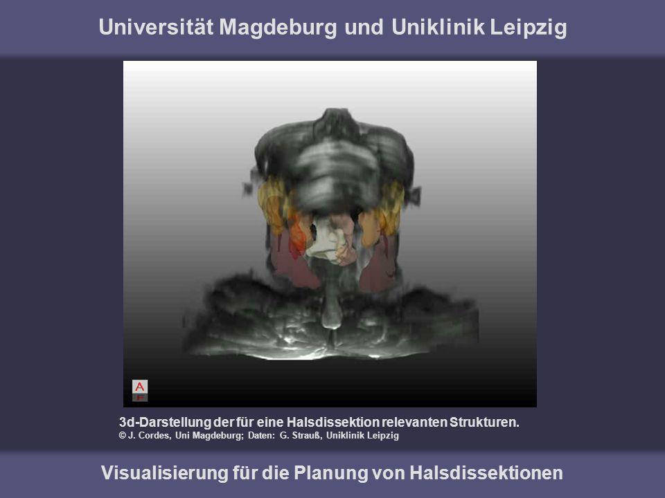 Universität Magdeburg und Uniklinik Leipzig Visualisierung für die Planung von Halsdissektionen 3d-Darstellung der für eine Halsdissektion relevanten