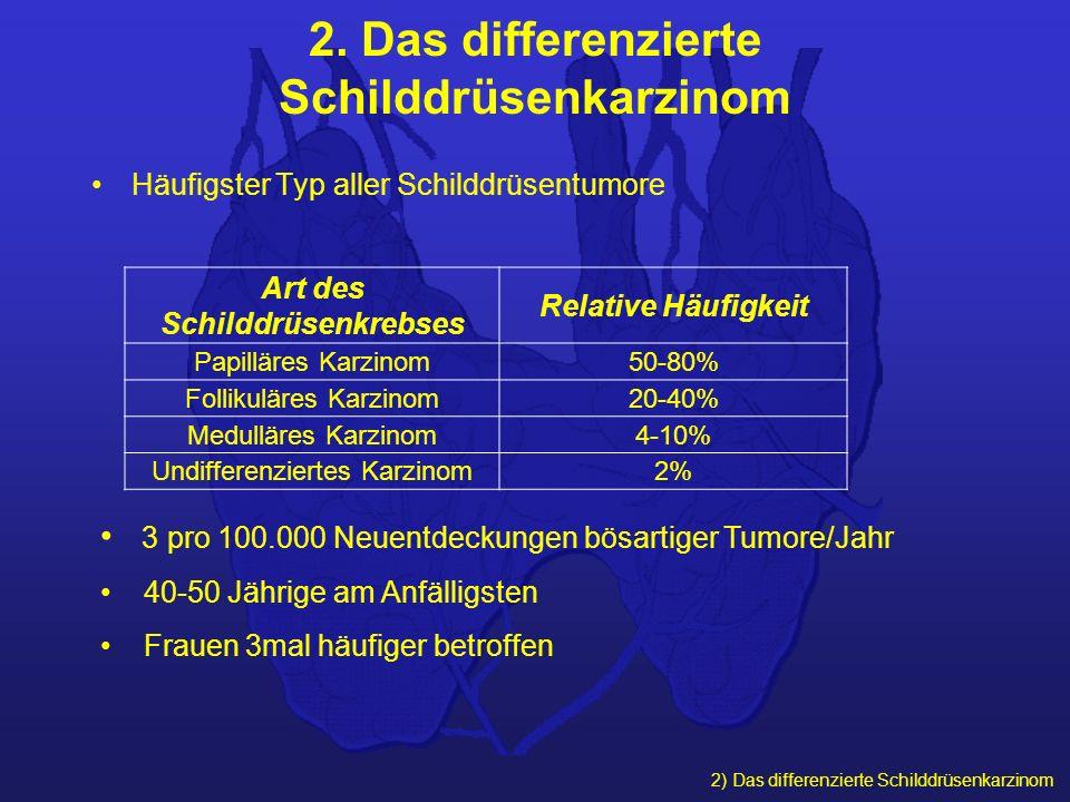 2) Das differenzierte Schilddrüsenkarzinom 2. Das differenzierte Schilddrüsenkarzinom Häufigster Typ aller Schilddrüsentumore Art des Schilddrüsenkreb