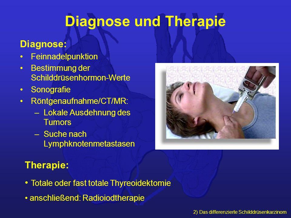 2) Das differenzierte Schilddrüsenkarzinom Diagnose und Therapie Diagnose: Feinnadelpunktion Bestimmung der Schilddrüsenhormon-Werte Sonografie Röntge
