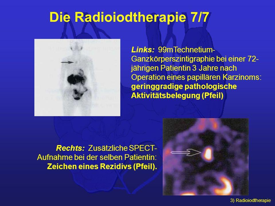 3) Radioiodtherapie Links: 99mTechnetium- Ganzkörperszintigraphie bei einer 72- jährigen Patientin 3 Jahre nach Operation eines papillären Karzinoms: