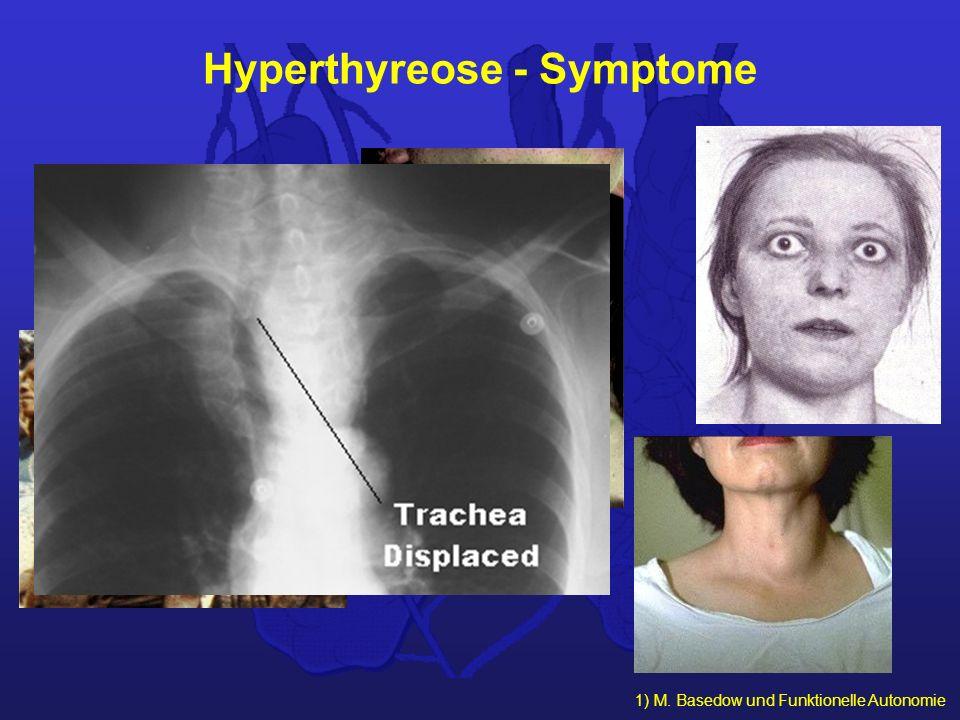 1) M. Basedow und Funktionelle Autonomie Hyperthyreose - Symptome