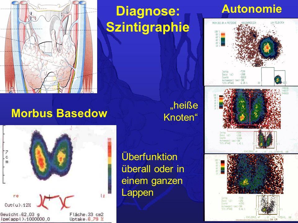 Diagnose: Szintigraphie Autonomie Morbus Basedow heiße Knoten Überfunktion überall oder in einem ganzen Lappen
