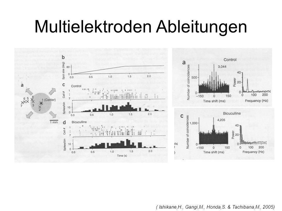 Multielektroden Ableitungen ( Ishikane,H., Gangi,M., Honda,S. & Tachibana,M., 2005)
