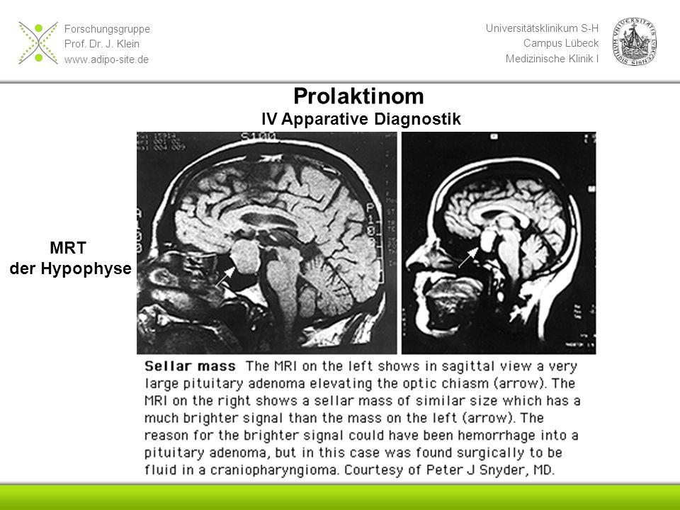 Forschungsgruppe Prof. Dr. J. Klein www.adipo-site.de Universitätsklinikum S-H Campus Lübeck Medizinische Klinik I Prolaktinom IV Apparative Diagnosti
