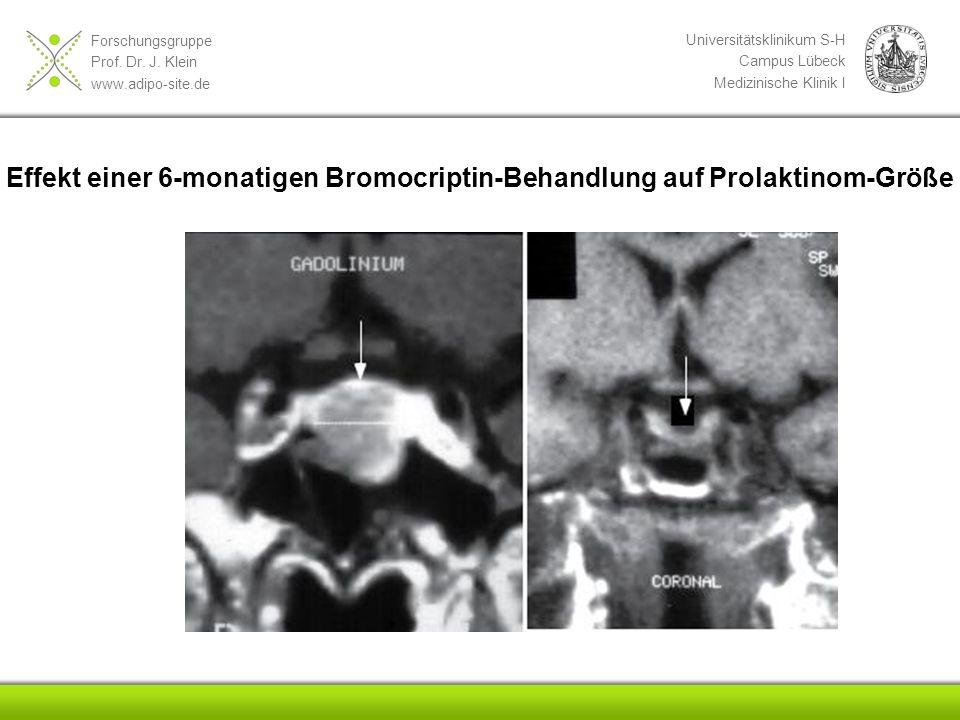Forschungsgruppe Prof. Dr. J. Klein www.adipo-site.de Universitätsklinikum S-H Campus Lübeck Medizinische Klinik I Effekt einer 6-monatigen Bromocript