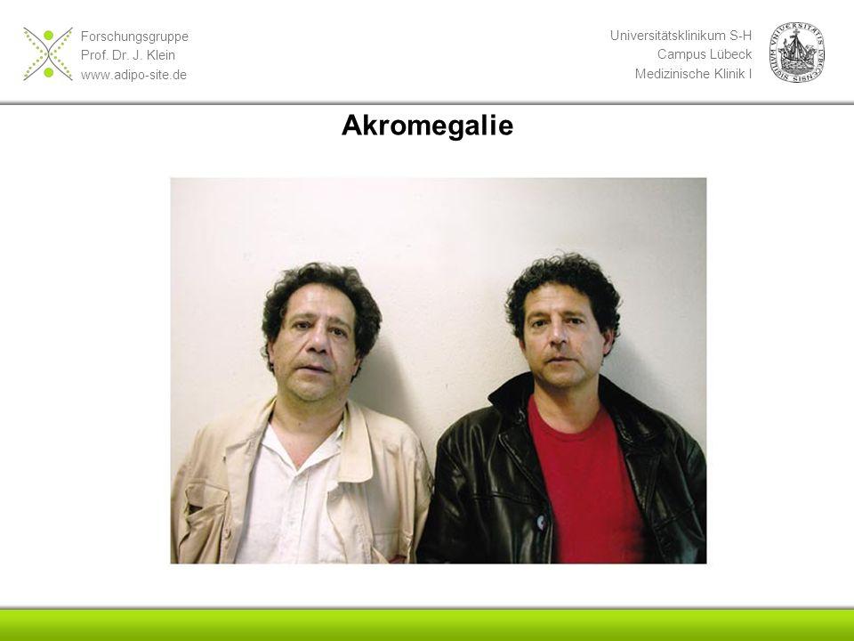 Forschungsgruppe Prof. Dr. J. Klein www.adipo-site.de Universitätsklinikum S-H Campus Lübeck Medizinische Klinik I Akromegalie