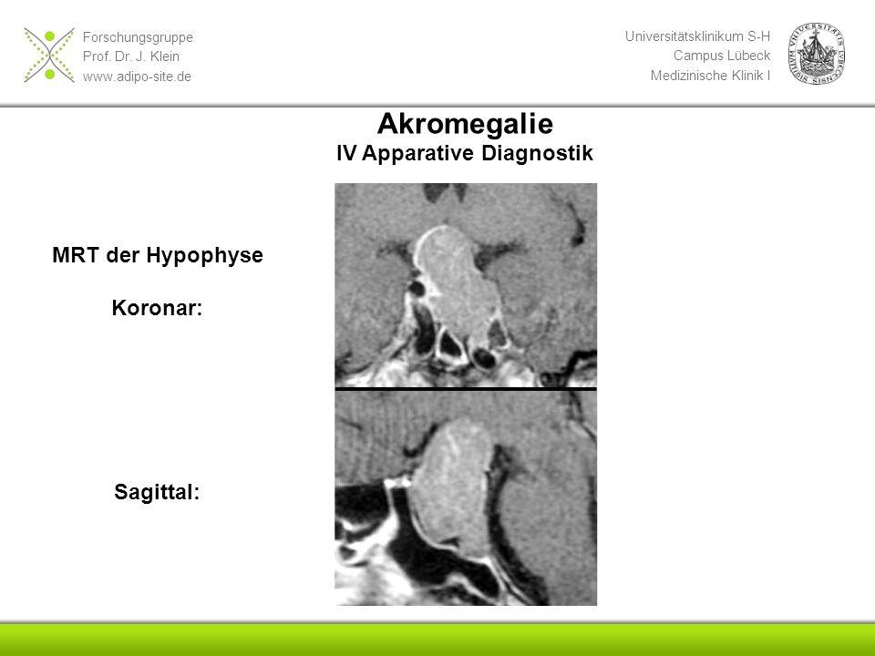 Forschungsgruppe Prof. Dr. J. Klein www.adipo-site.de Universitätsklinikum S-H Campus Lübeck Medizinische Klinik I Akromegalie IV Apparative Diagnosti
