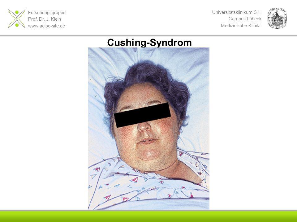 Forschungsgruppe Prof. Dr. J. Klein www.adipo-site.de Universitätsklinikum S-H Campus Lübeck Medizinische Klinik I Cushing-Syndrom