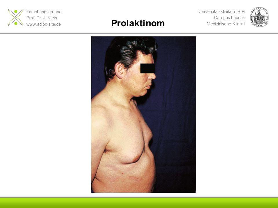 Forschungsgruppe Prof. Dr. J. Klein www.adipo-site.de Universitätsklinikum S-H Campus Lübeck Medizinische Klinik I Prolaktinom