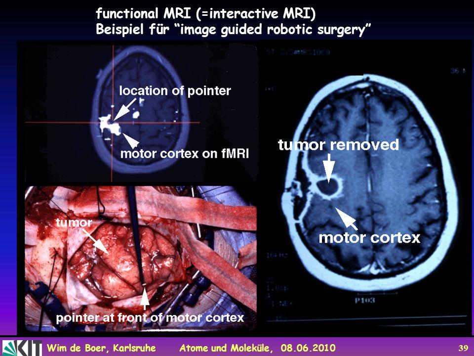 Wim de Boer, Karlsruhe Atome und Moleküle, 08.06.2010 39 functional MRI (=interactive MRI) Beispiel für image guided robotic surgery