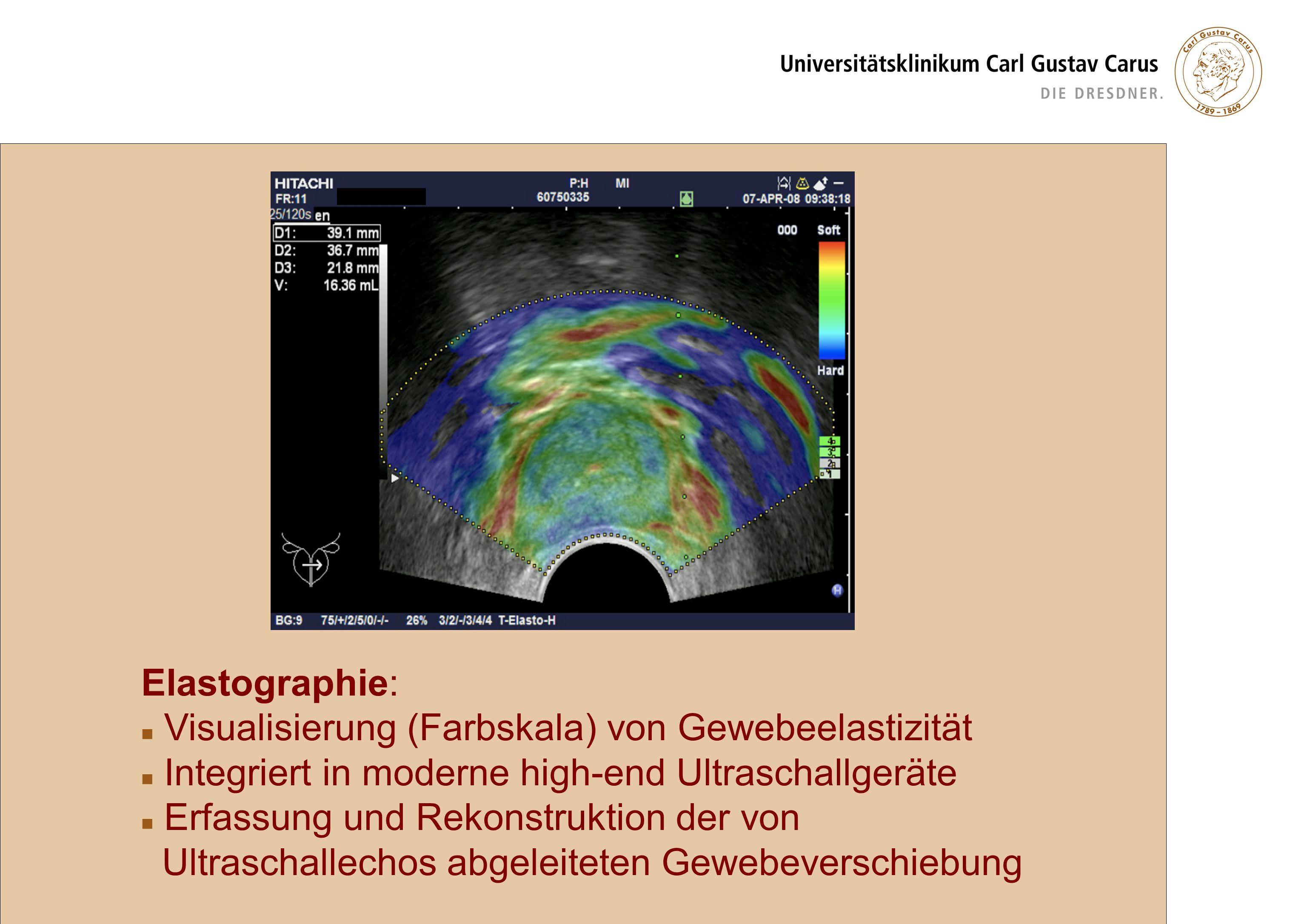Patienten und Methodik TRUS-Biopsie mit Elastographie N = 97 06/2007 - 01/2009