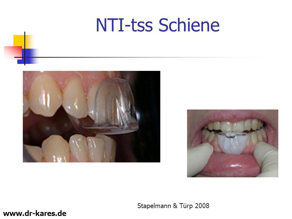 www.dr-kares.de NTI-tss Schiene Stapelmann & Türp 2008