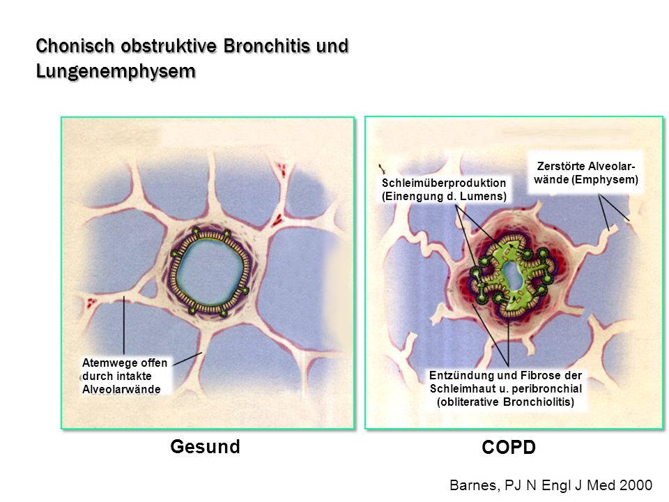 Gesund COPD Atemwege offen durch intakte Alveolarwände Zerstörte Alveolar- wände (Emphysem) Schleimüberproduktion (Einengung d. Lumens) Entzündung und