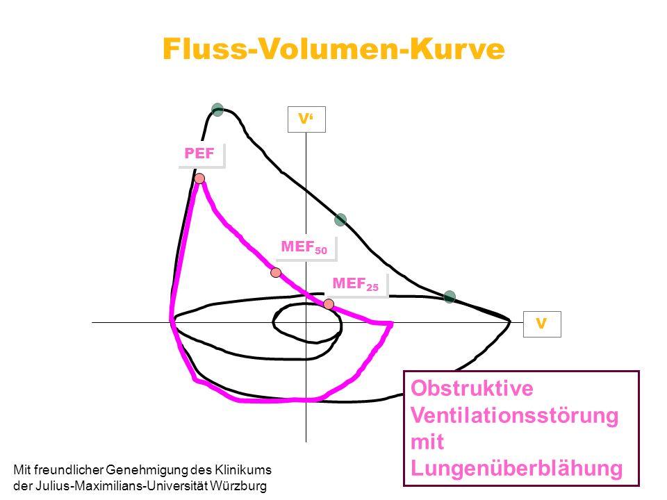 Fluss-Volumen-Kurve V V MEF 25 MEF 50 PEF Obstruktive Ventilationsstörung mit Lungenüberblähung Mit freundlicher Genehmigung des Klinikums der Julius-