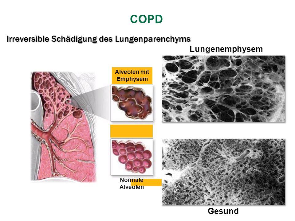 Irreversible Schädigung des Lungenparenchyms Gesund Lungenemphysem Alveolen mit Emphysem Normale Alveolen COPD