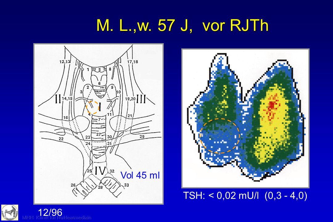 FT3: 6,0 pmol/l(3,1 - 6,5) FT4: 15,1 pmol/l(10,3 - 21,2) TSH:0,05 mU/l(0,3 - 4,0) 6,7 ml Vol 30 ml LG 090154 03/01 G. L. vor RJTH